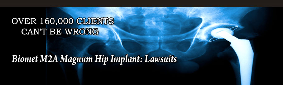 Biomet M2A Magnum Hip Implant: Lawsuits